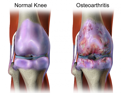 Combatting Osteoarthritis, the Arthritis of Aging