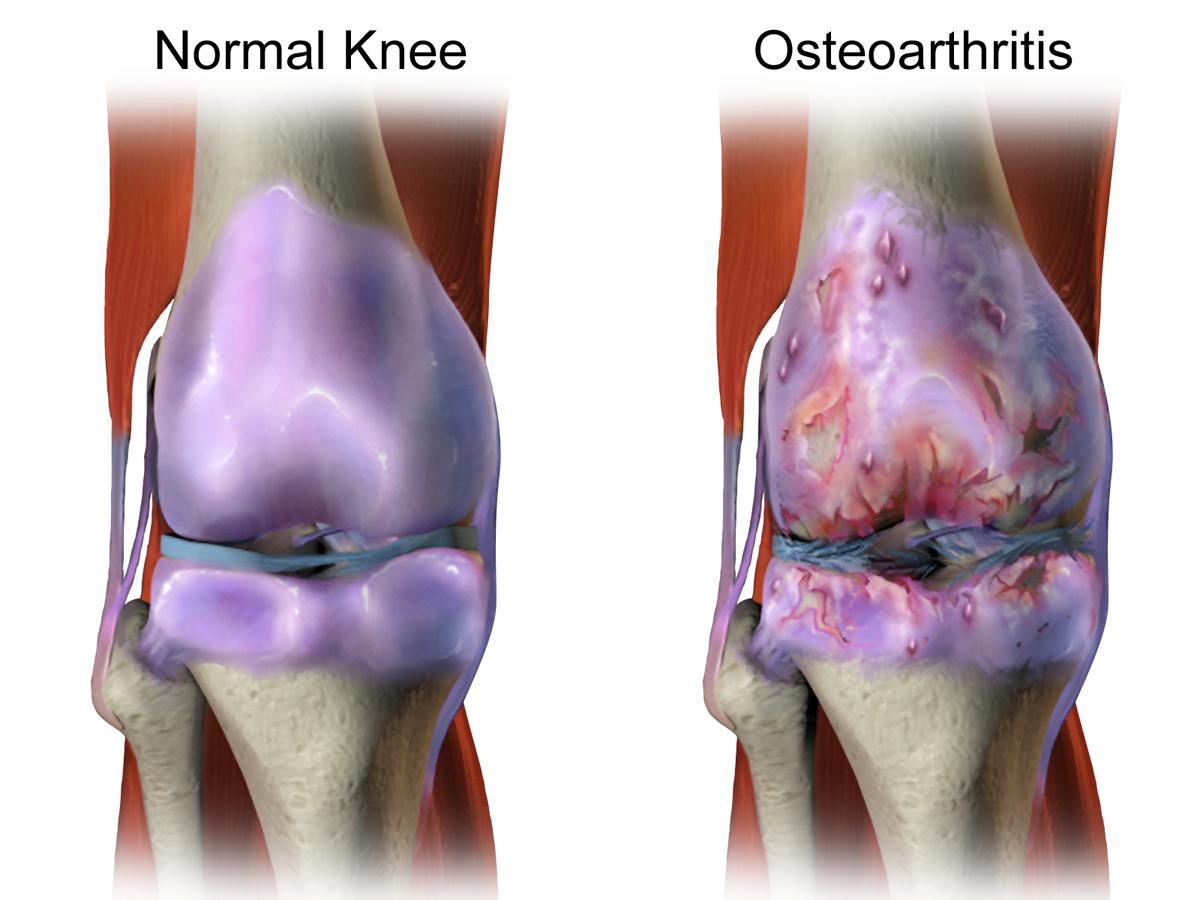 Combatting Osteoarthritis